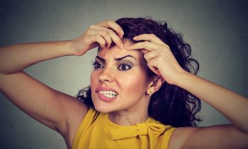 5 Ways of Dealing With Stress Acne