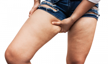 How Can You Conquer Cellulite?