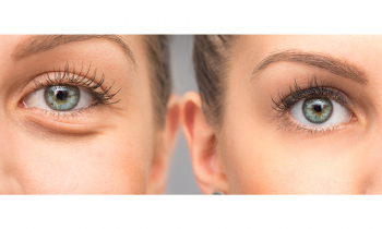 What You Need to Know about Puffy Eyes