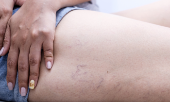 Secrets About Spider Veins