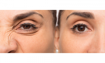 Can You Get Rid of Crow's Feet?
