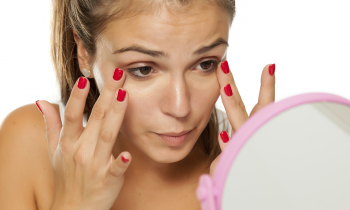 Why Do We Get Dark Under Eye Circles?